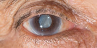 Cataract Extraction