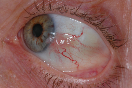 Conjunctival Lesion Excision