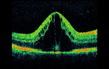 Optical Coherence Tomography Testing