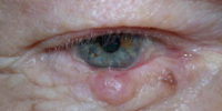 Eyelid Lesion Excision